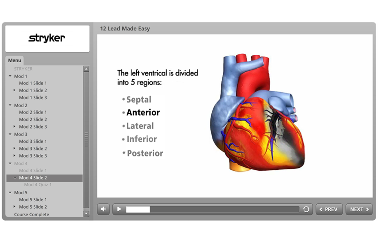 ECG Screenshot